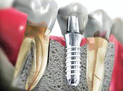 реставрация зубов,имплантация качественными имплантами