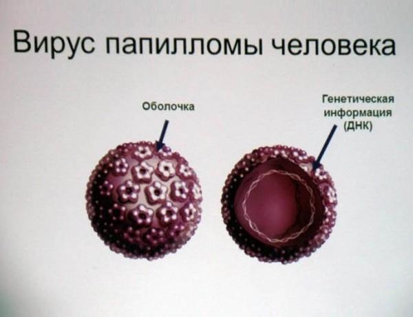 папилломы