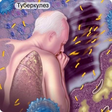 больной туберкулезом