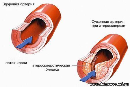 атеросклероз сосудов. Лечение и профилактика атеросклероза