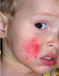 аллергия на цитрусовые лечение народными средствами