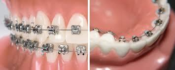 пластины на зубы цена