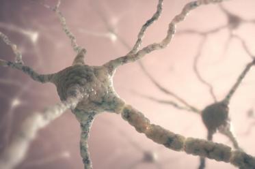 Рассеянный склероз - это аутоиммунное заболевание